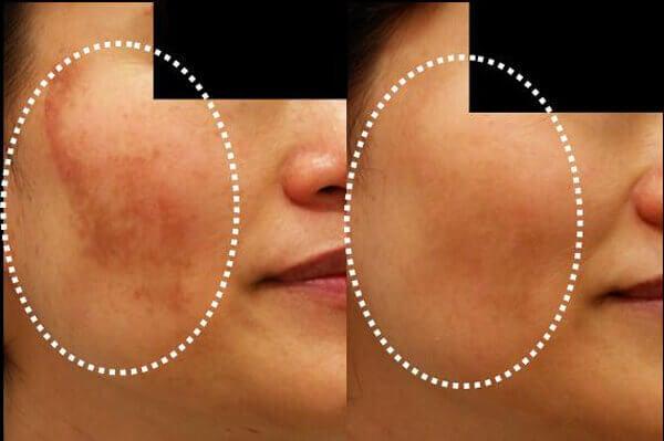 Minska hudmissfärgning med 5 hemgjorda masker