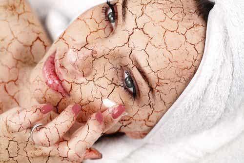 Hur man motverkar torr hud i ansiktet