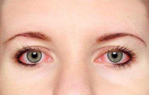 glansiga ögon symtom