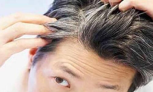 Undvik tidiga grå hår med dessa 6 vitaminer & livsmedel