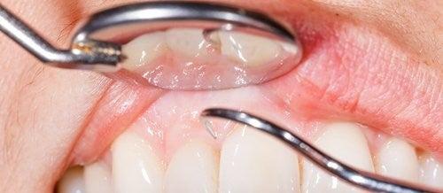 14 anledningar till varför ditt tandkött blöder