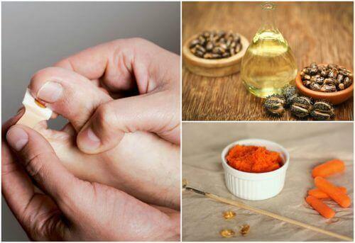 Fixa trasiga nagelband med 8 naturliga behandlingar
