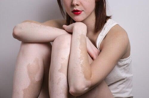 Kvinna med vitiligo