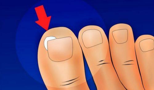 Hur man förebygger nageltrång: enkla tips