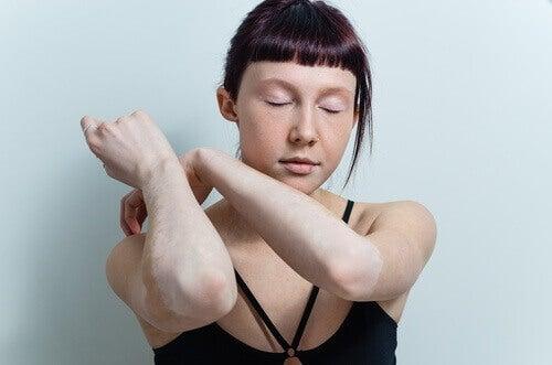 Vitiligo på armarna