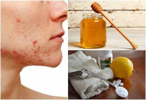 6 naturliga och effektiva kurer för cystisk akne