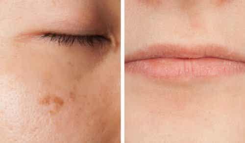 5 sätt ditt ansikte kan varna dig om vitaminbrist