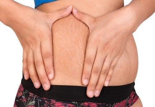 Två naturliga alternativ för att behandla hudbristningar