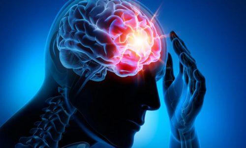 Fyra vanliga cerebrovaskulära sjukdomar