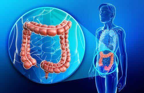 Vad är egentligen Crohns sjukdom?