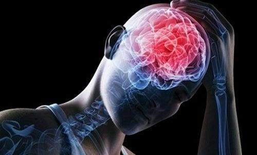 Svår huvudvärk