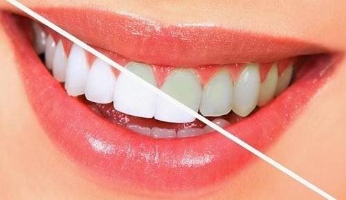 10 livsmedel som gör tänderna vitare naturligt