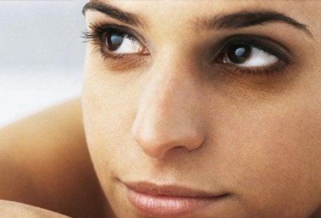 Kvinna med påsar under ögonen
