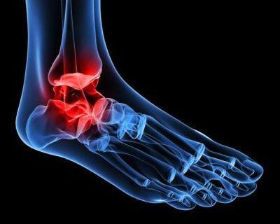 Cystor och onormal benväxt kan orsaka osteoartrit i fotleden