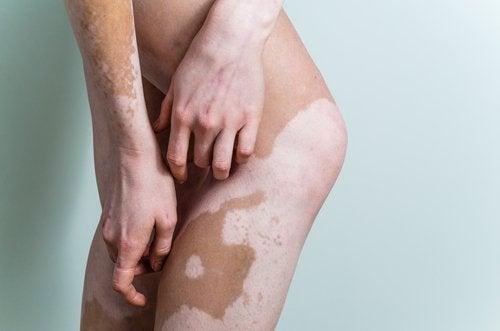 Fakta om vitiligo – lär dig om orsaker och kurer