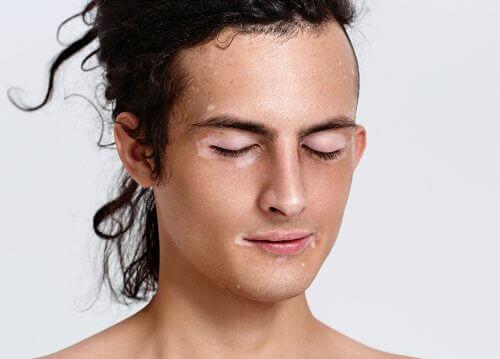 Person med vitiligo i ansiktet