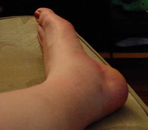 Svullna fotleder – 5 saker det kan varna dig om