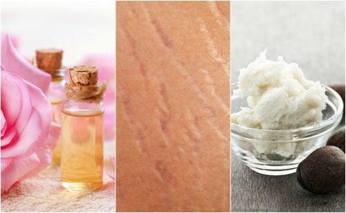 Gör hudbristningar mindre synliga naturligt