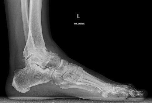 Röntgenbild på fot