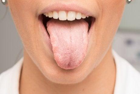 belägg på tungan