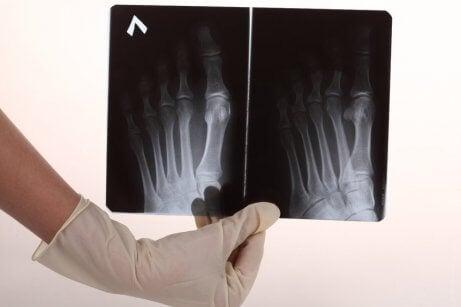 Röntgenbild på fötter