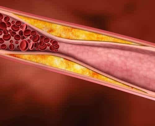Fem hälsosamma fetter som sänker kolesterolet
