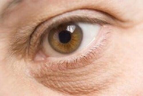 Mineralbrist kan ge påsar under ögonen