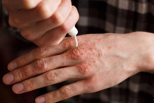 6 naturliga krämer som behandlar psoriasis