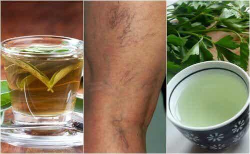 5 vätskedrivande teer för åderbråck
