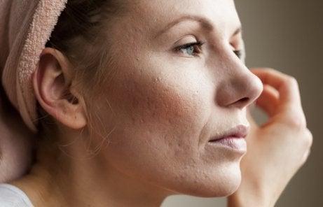 Akne och ökat ansiktshår