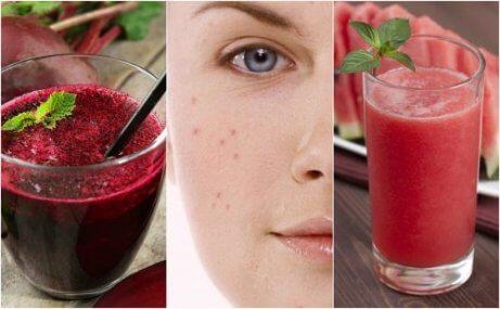 Bekämpa akne med 5 avgiftande smoothies