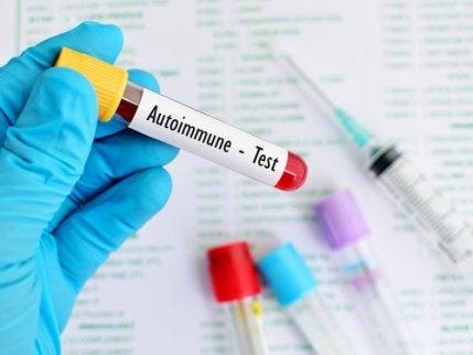 Brister i immunsystemet