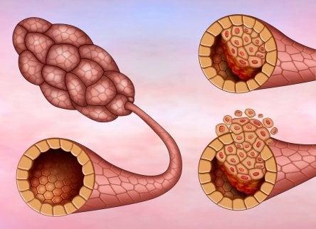 Duktalt karcinom