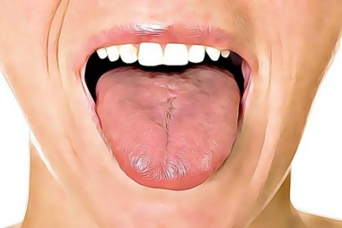 vad hjälper mot blåsor i munnen