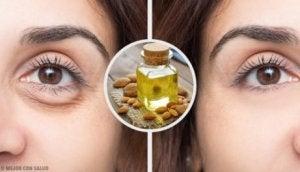 höga kortisolvärden symtom