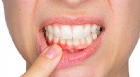 Var i tandköttet