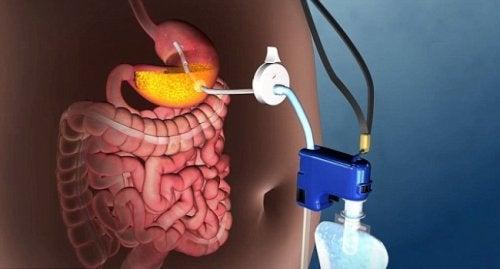 Upptäck en ny teknik för att behandla fetma utan kirurgi