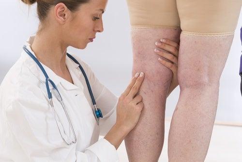 Vätskeretention kan vara ett symptom på njursvikt