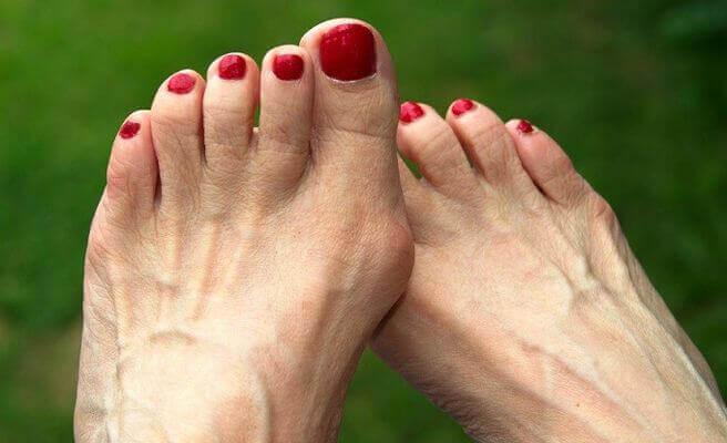 Använd bra skor för att undvika hallux valgus och förhårdnader.