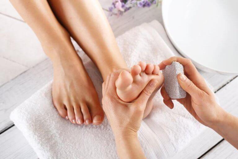 behandling av hudvalkar på fötterna med pimpsten