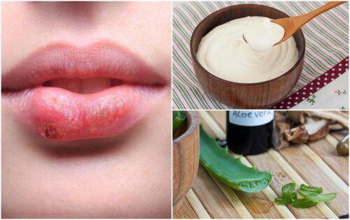 7 effektiva naturliga behandlingar för munsår
