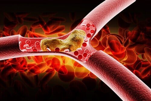 tänk på att sänka högt kolesterol för att undvika blockerade artärer
