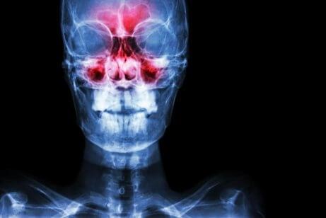 Vid en näsundersökning kan smärta visas som ett symptom på bihåleinflammation.