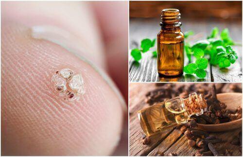 7 eteriska oljor som hjälper dig att bota vårtor