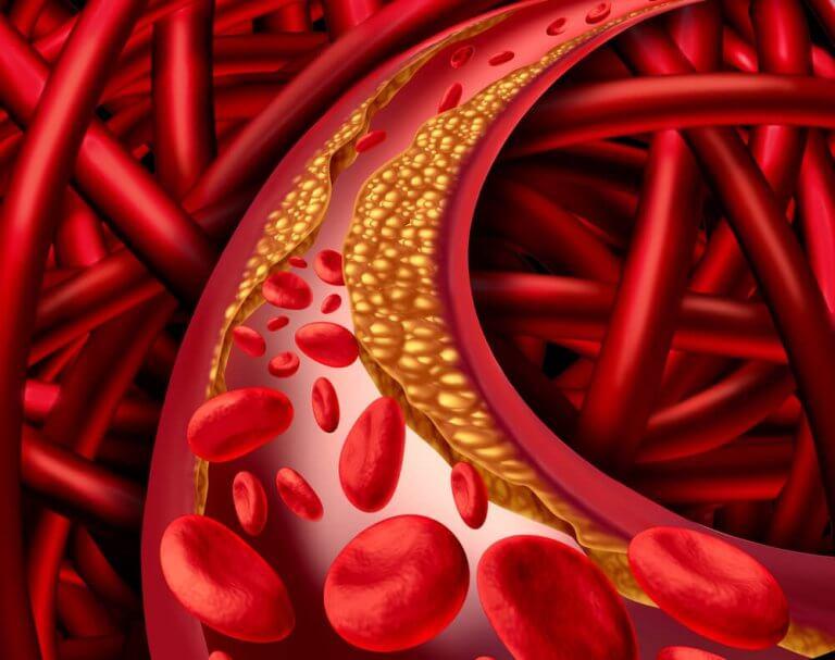 Bekämpa kolesterolproblem