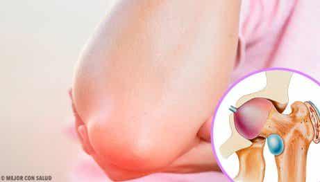 Fakta om och symptom på bursit du bör känna till