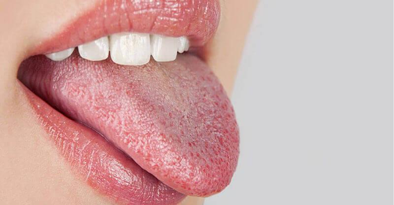 torr i munnen och halsen