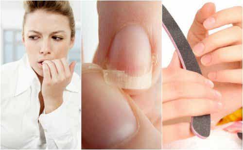 8 anledningar till varför du har sköra naglar