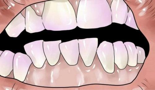 Hur du kan bli av med tandsten naturligt