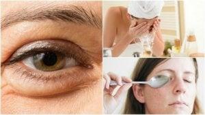 Att minska påsar under ögonen